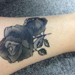 刺青・タトゥーは安全・確実に除去しよう 傷が目立たずキレイに消す